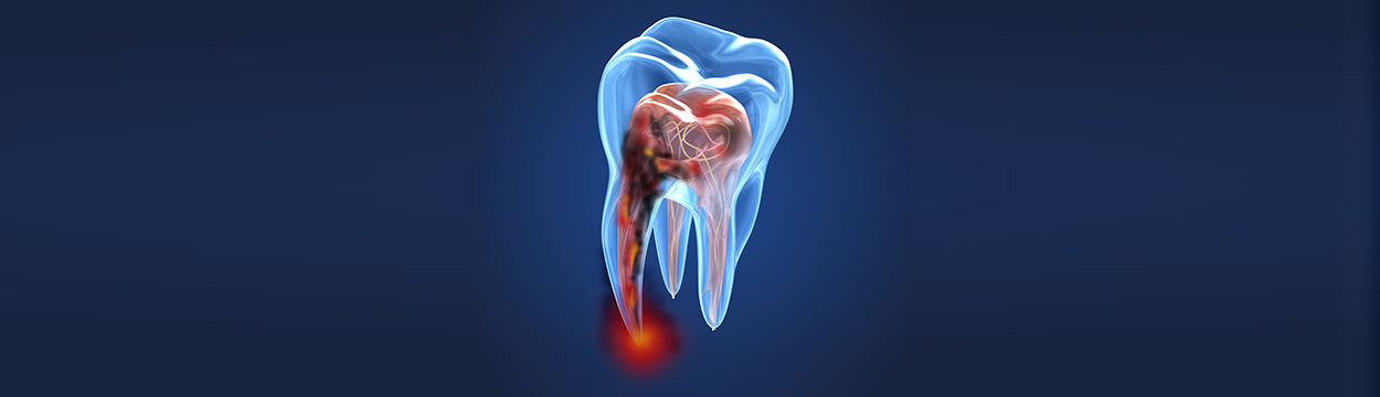 Wurzelbehandlung Zahnarzt Wernigerode