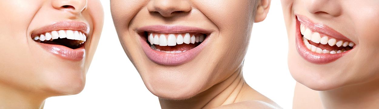 Prophylaxe Zahnarzt Wernigerode