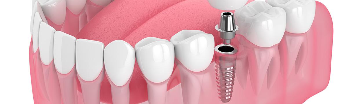 Implantate Zahnarztpraxis Wernigerode