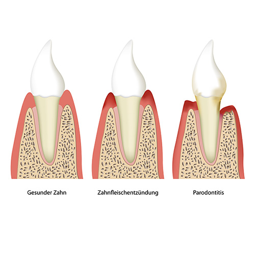 Parodontose Zahnarzt Wernigerode