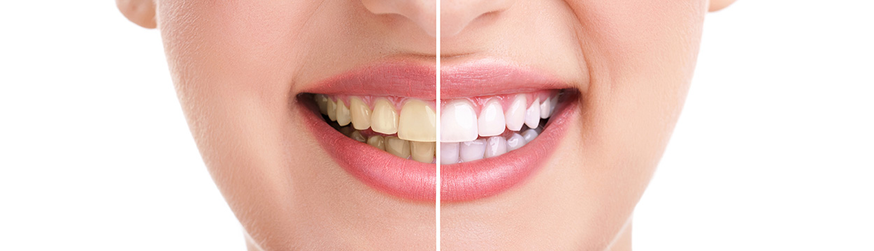 Bleaching Zahnarzt Wernigerode